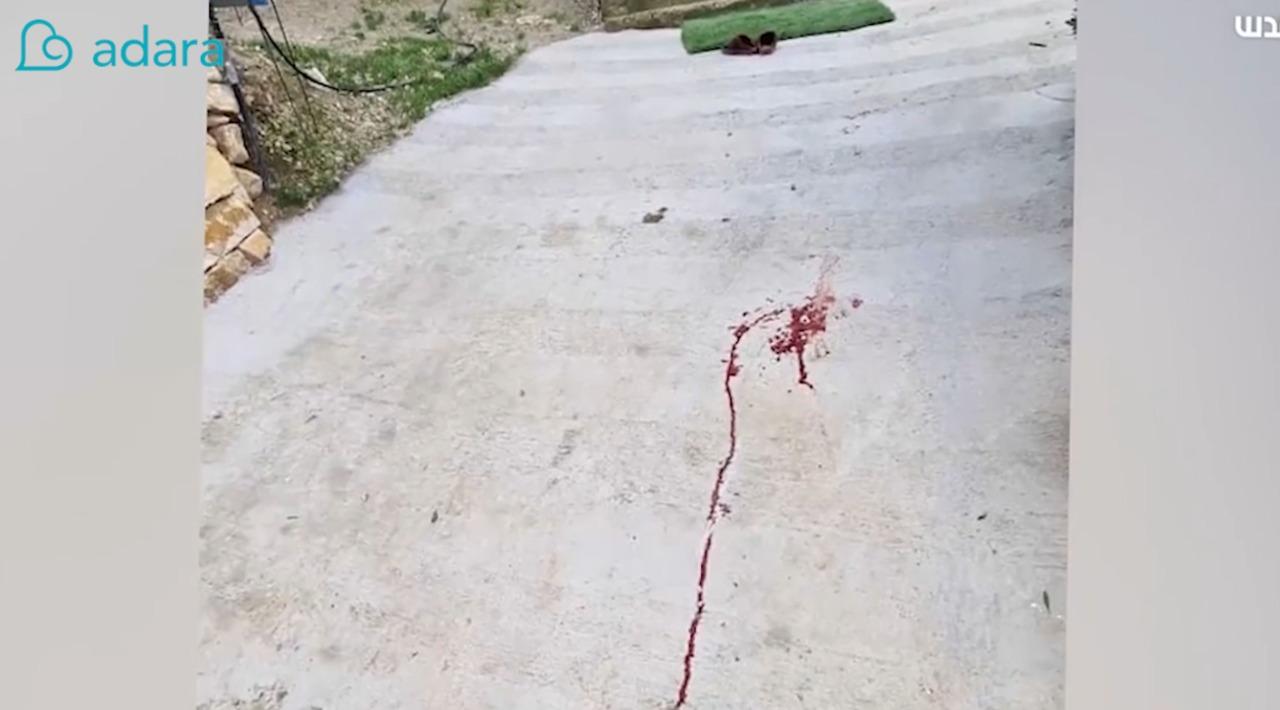 kondisi anak palestina diserang