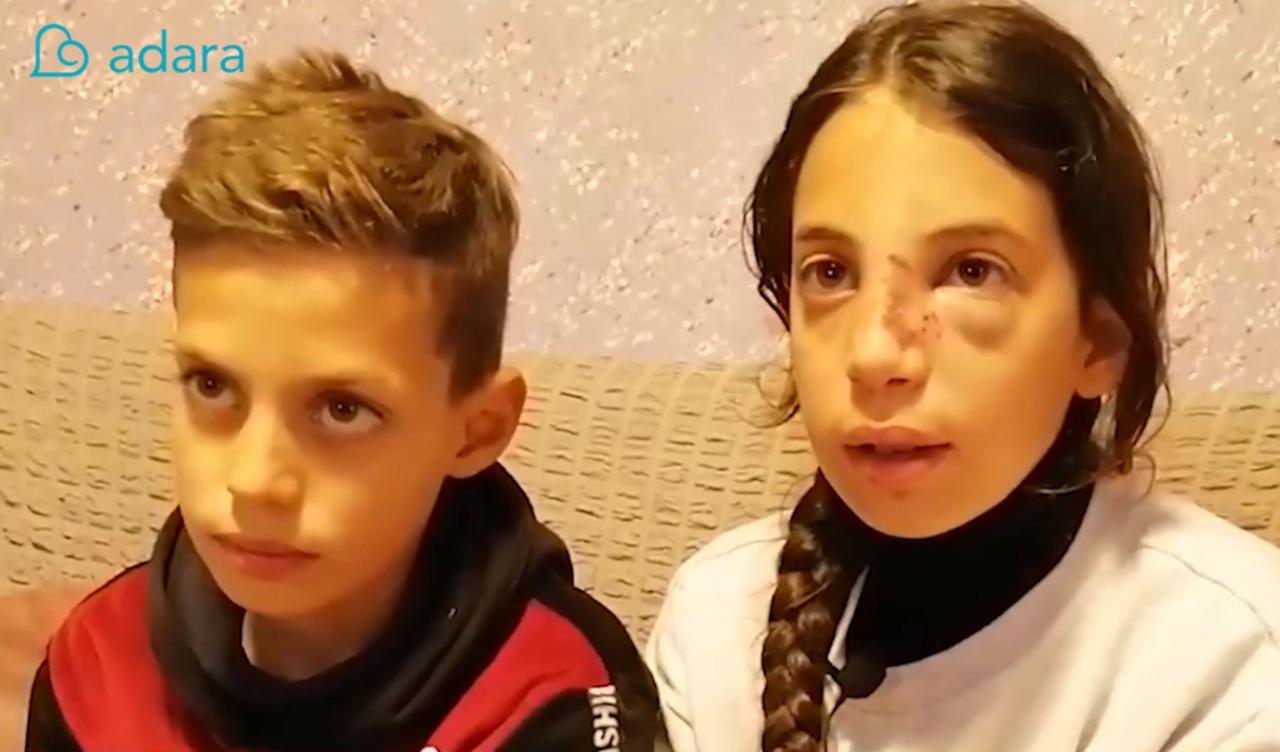 kondisi anak palestina saat diserang