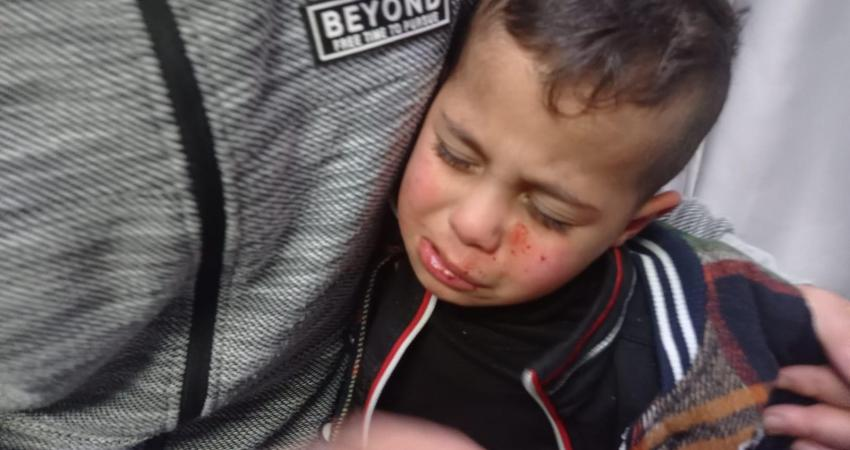 Lagi, Anak Palestina Jadi Sasaran Serangan Para Pemukim Yahudi